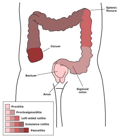 dikke darm diarree